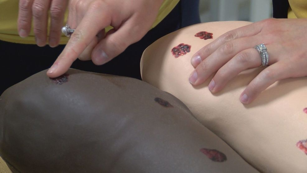 Etsu Professor S Invention Gives Students Hands On Experience Identifying Skin Cancer Wcyb